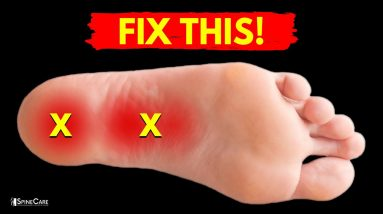 How to Relieve PLANTAR FASCIITIS Pain in Seconds
