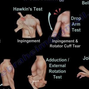 Shoulder Examination / Subacromial, Cuff - Everything You Need To Know - Dr. Nabil Ebraheim