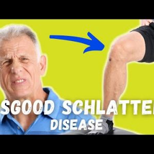 What is Causing Your Knee Pain? Osgood Schlatter Disease? How to Tell